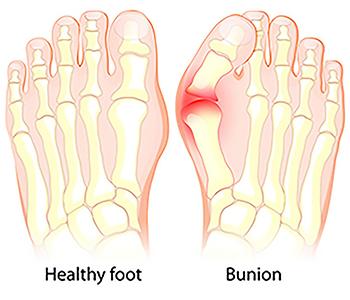 Symptoms of a Bunion