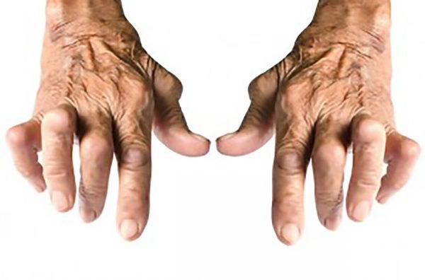 Gout Treatment Cream