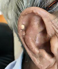 Helix of Ear