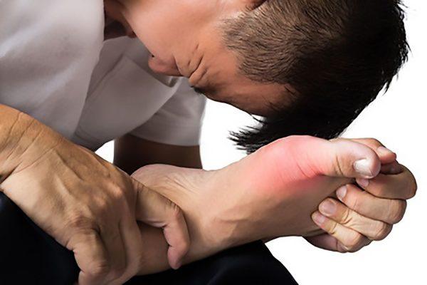 Gout Relief Cream