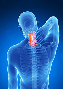 Possible Causes of Neck Pain